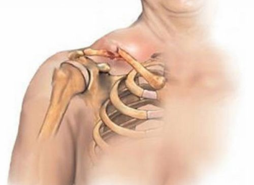 Плечевые кости