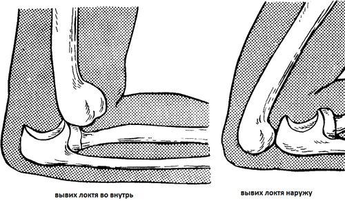 виды травмы локтя