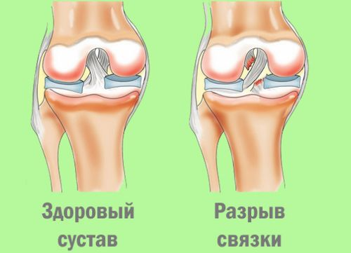 Разрыв связки и здоровый сустав