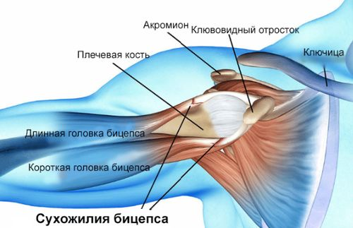 Разрыв сухожилия плечевого пояса