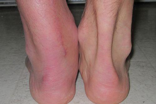поврежденная связка ноги