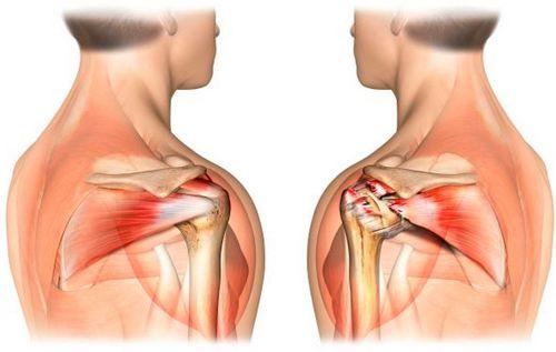 Лечение разрыва сухожилий плечевого аппарата