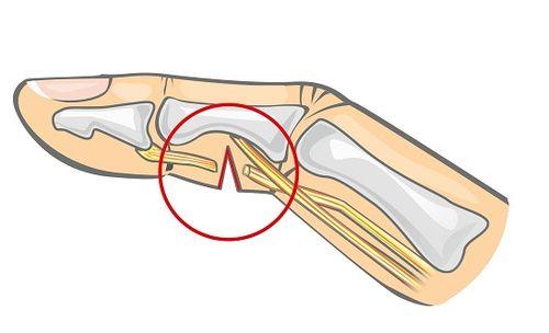 повреждений сухожилий пальца