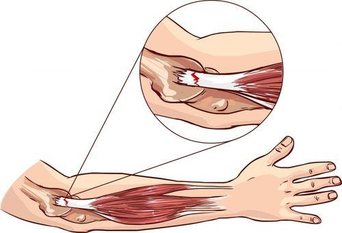 разорванная мышца руки