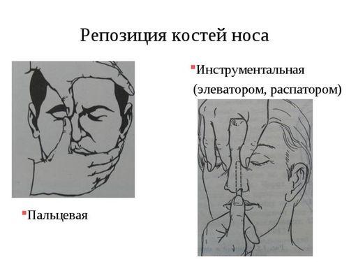 вправление костей носа