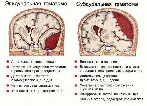 виды гематомы
