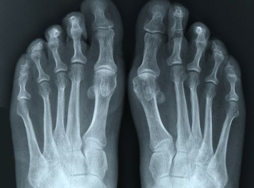 снимок костей ног