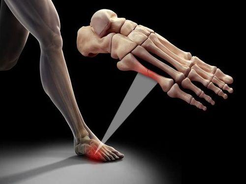перелом кости ноги