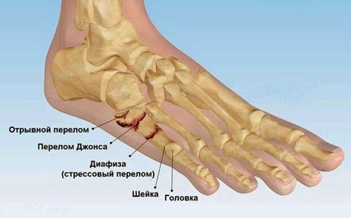 перелом кости пальца ноги